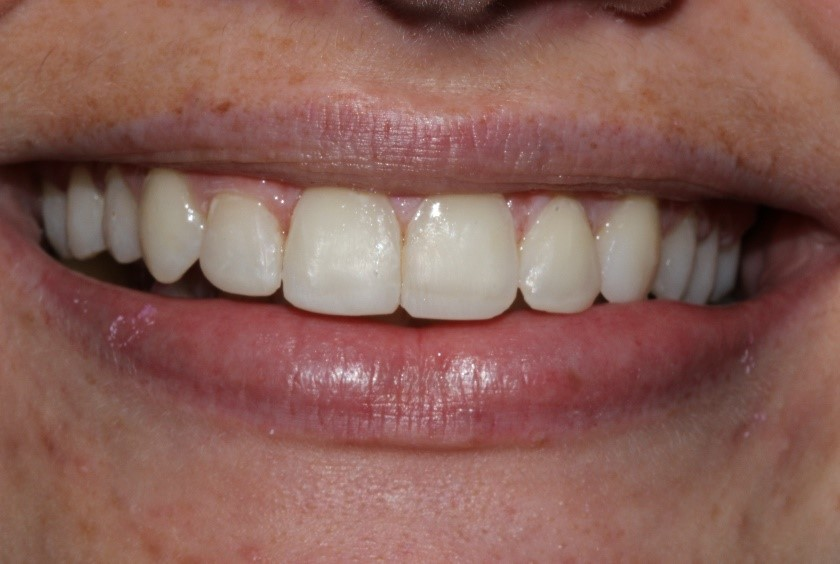 Anne's Six Month Smiles®