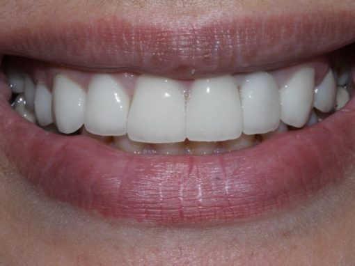 Carla's crowns and veneers