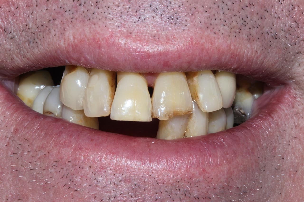 Mark's fixed implants and fixed bridge | Excel Dental